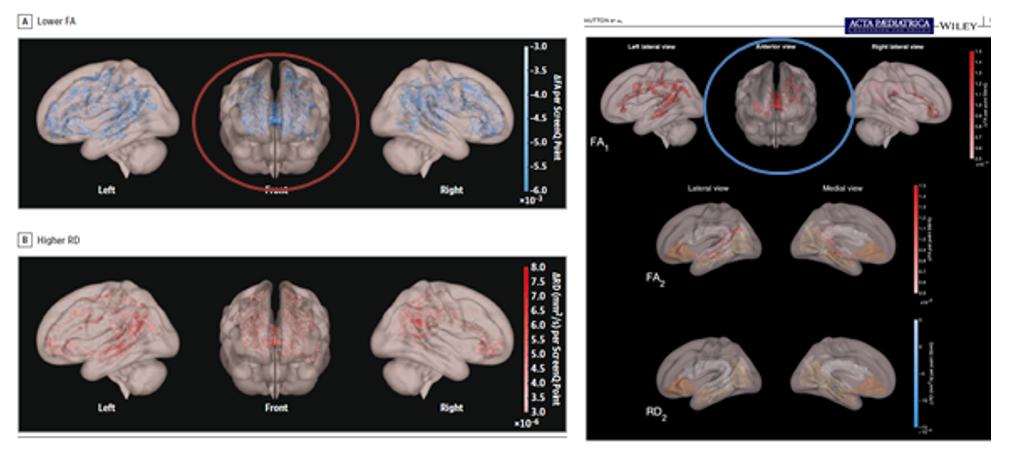 השוואה בצילומי מוח כפי שהוצגו בכתבי עת ובטלוויזיה
