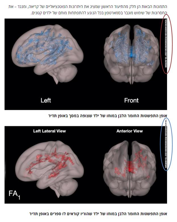 סריקה מוחית שמדגימה יתרונות של קריאה וחסרונות של שימוש בסמארטפון