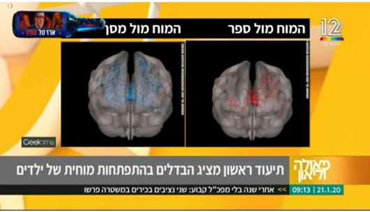 סקירת מוחית מתוך תכנית הבוקר של פאולה וליאון